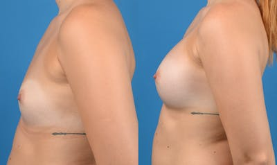 Breast Augmentation Gallery - Patient 14242463 - Image 2