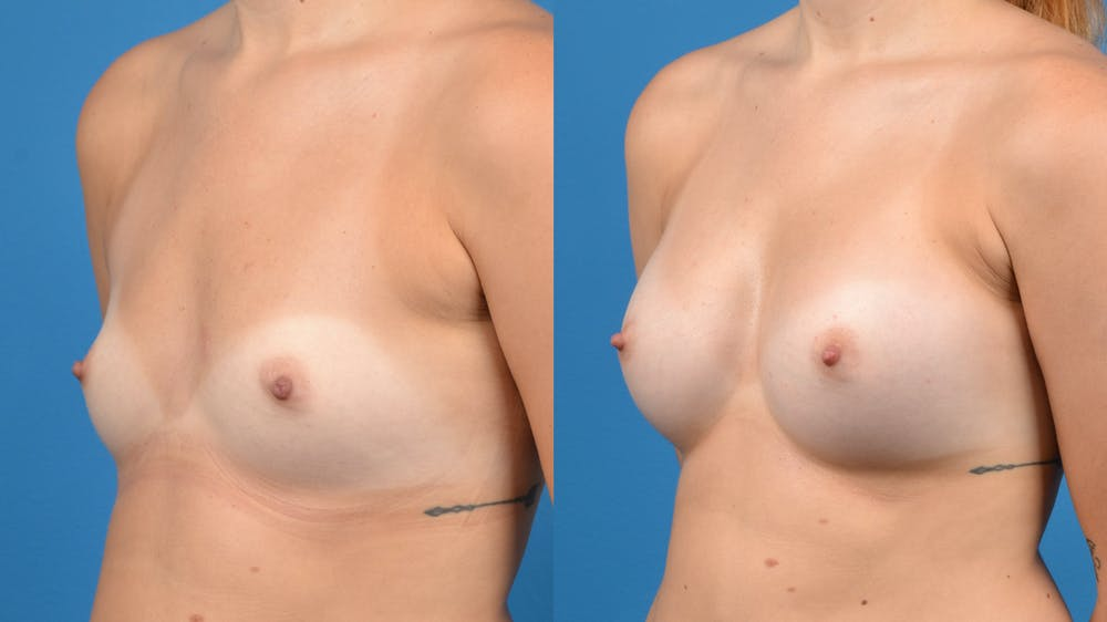 Breast Augmentation Gallery - Patient 14242463 - Image 3