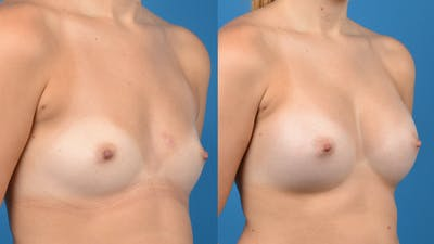Breast Augmentation Gallery - Patient 14242463 - Image 4
