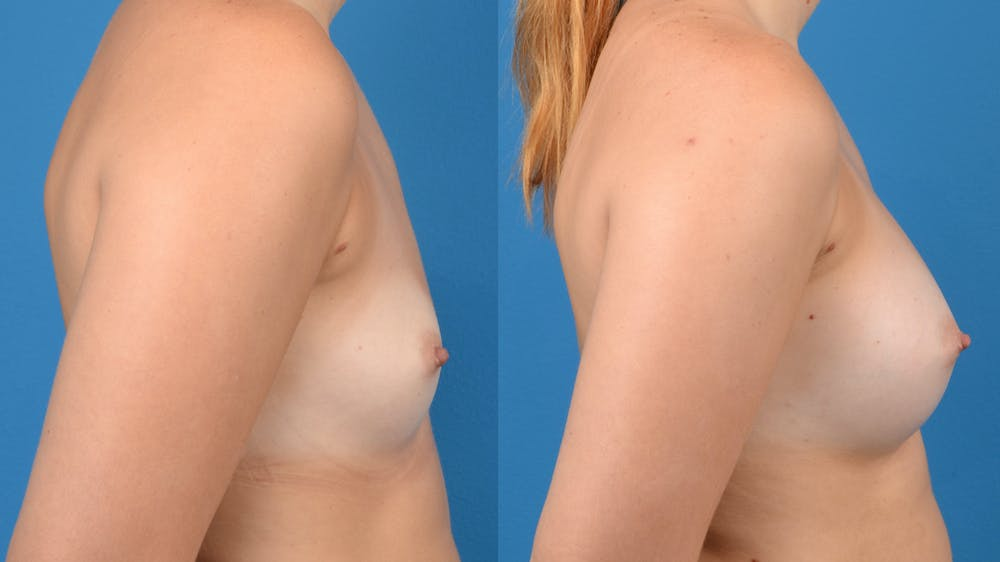 Breast Augmentation Gallery - Patient 14242463 - Image 5