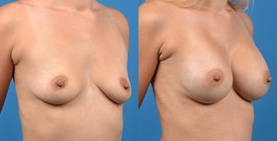 Breast Augmentation Gallery - Patient 14242464 - Image 2
