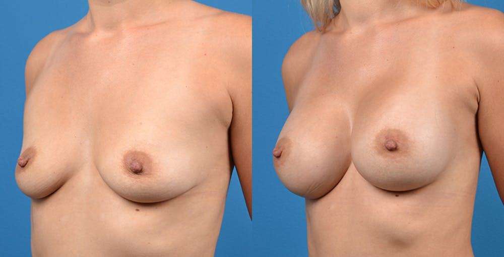 Breast Augmentation Gallery - Patient 14242464 - Image 3