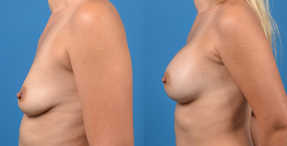 Breast Augmentation Gallery - Patient 14242464 - Image 4