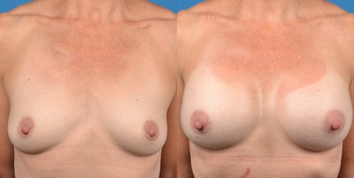 Breast Augmentation Gallery - Patient 14778322 - Image 1