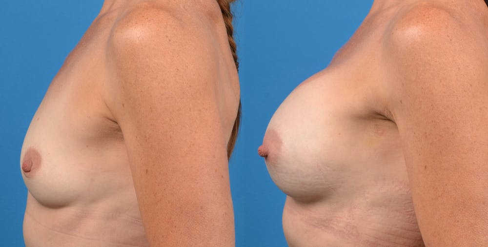 Breast Augmentation Gallery - Patient 14778322 - Image 2