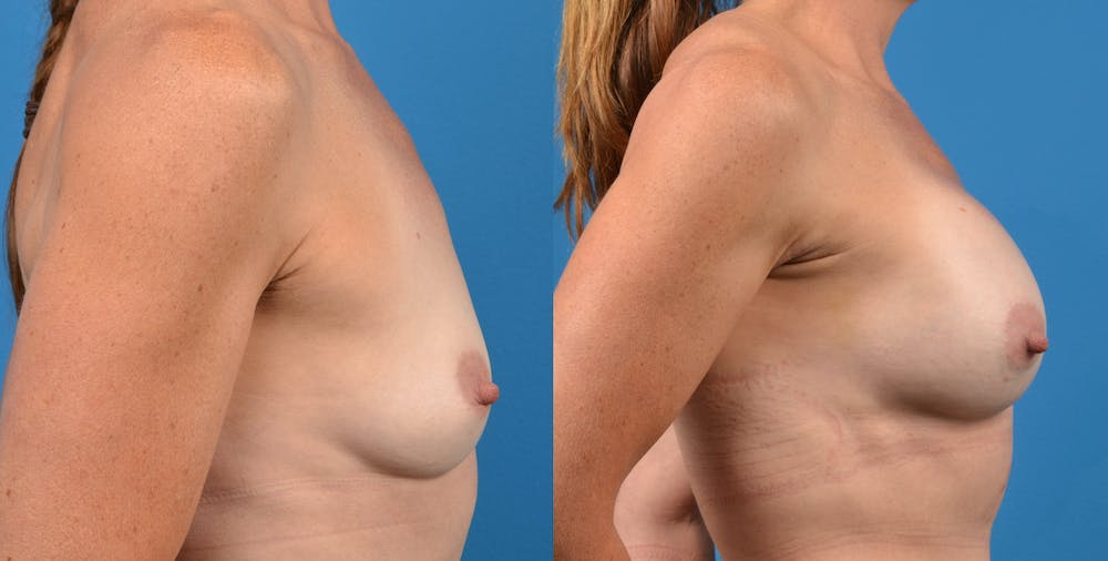 Breast Augmentation Gallery - Patient 14778322 - Image 3