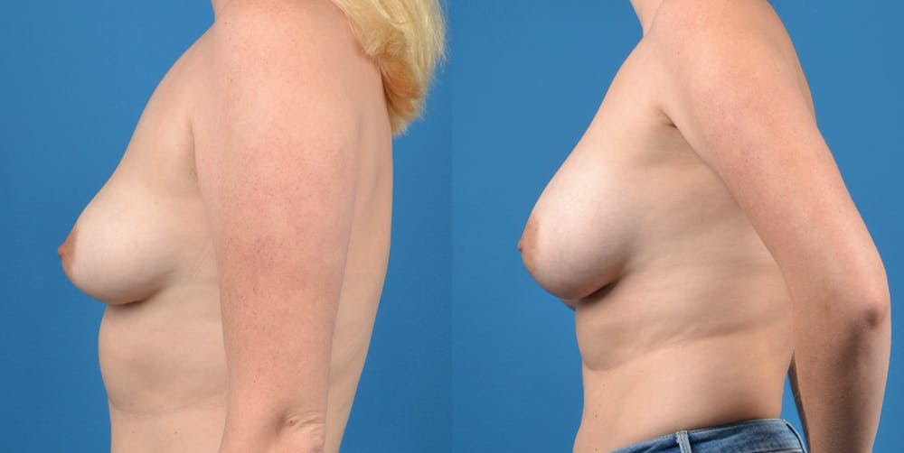 Breast Augmentation Gallery - Patient 14778609 - Image 2