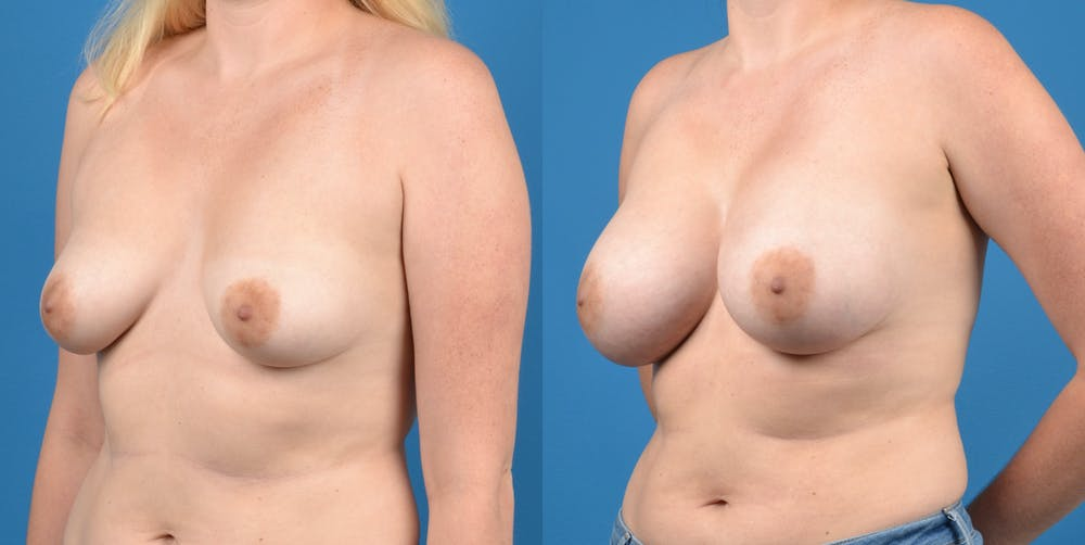 Breast Augmentation Gallery - Patient 14778609 - Image 3