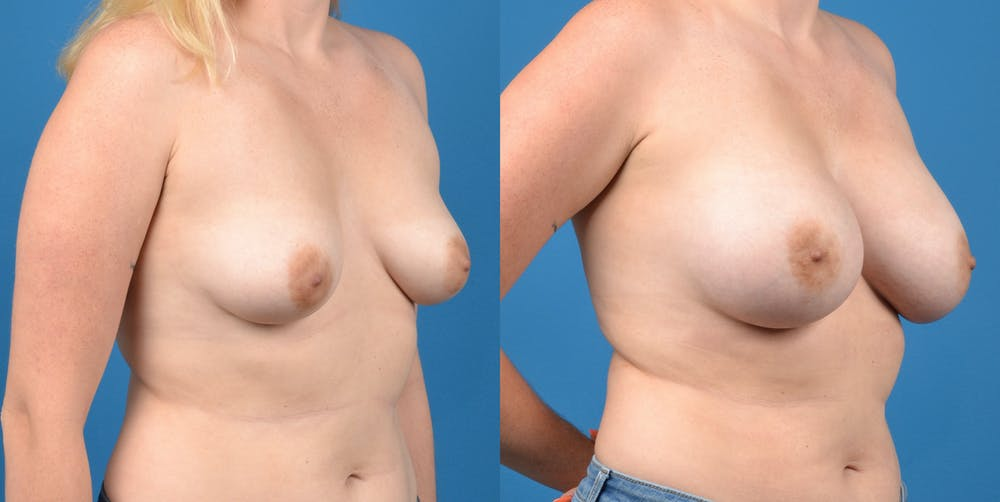 Breast Augmentation Gallery - Patient 14778609 - Image 4
