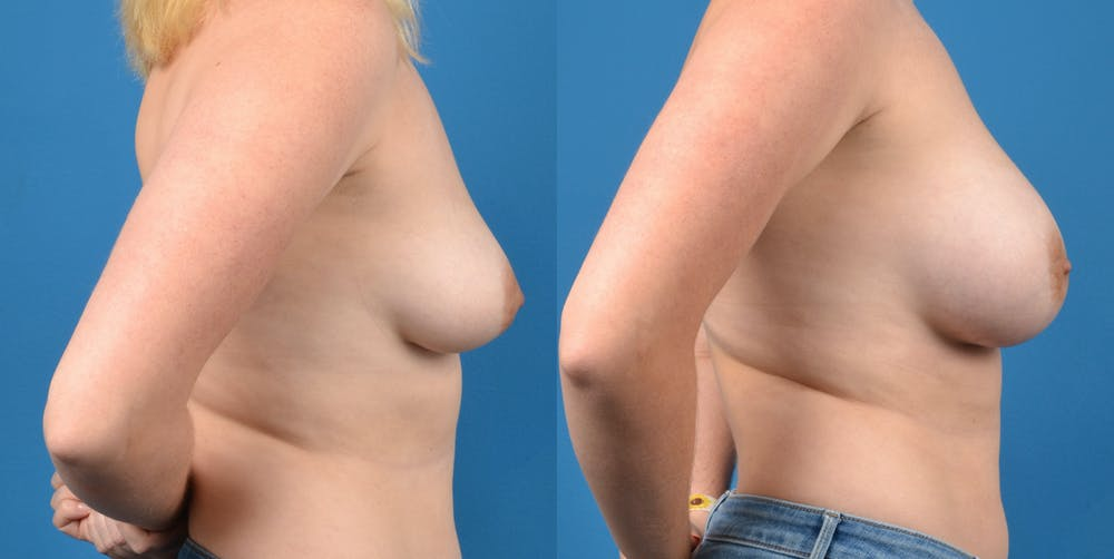 Breast Augmentation Gallery - Patient 14778609 - Image 5