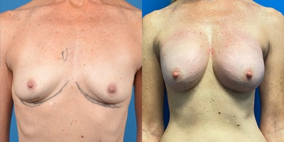 Breast Lift Gallery - Patient 14778675 - Image 1