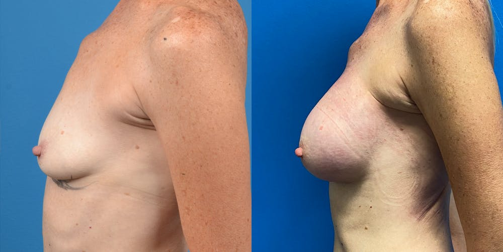 Breast Augmentation Gallery - Patient 14778673 - Image 2