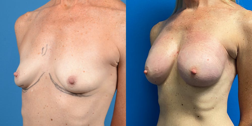 Breast Augmentation Gallery - Patient 14778673 - Image 3