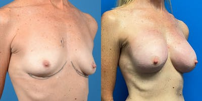 Breast Augmentation Gallery - Patient 14778673 - Image 4