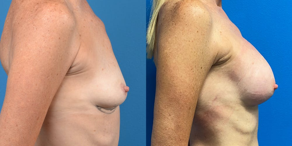 Breast Augmentation Gallery - Patient 14778673 - Image 5