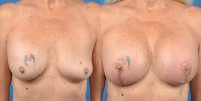 Breast Lift Gallery - Patient 14778919 - Image 1