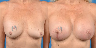 Breast Augmentation Gallery - Patient 14778920 - Image 1