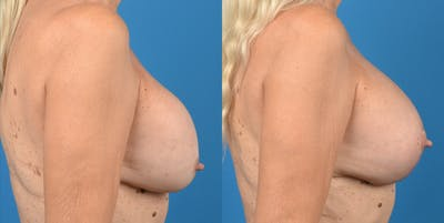 Breast Lift Gallery - Patient 14778919 - Image 2