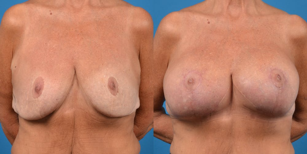 Breast Revision Gallery - Patient 14778924 - Image 1