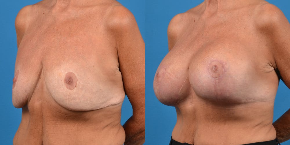 Breast Revision Gallery - Patient 14778924 - Image 2