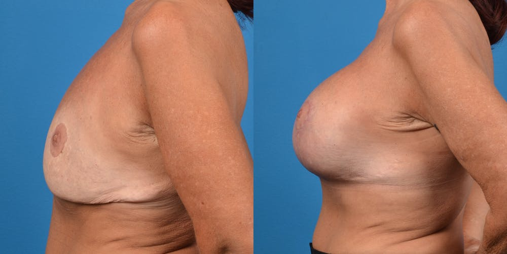 Breast Revision Gallery - Patient 14778924 - Image 3