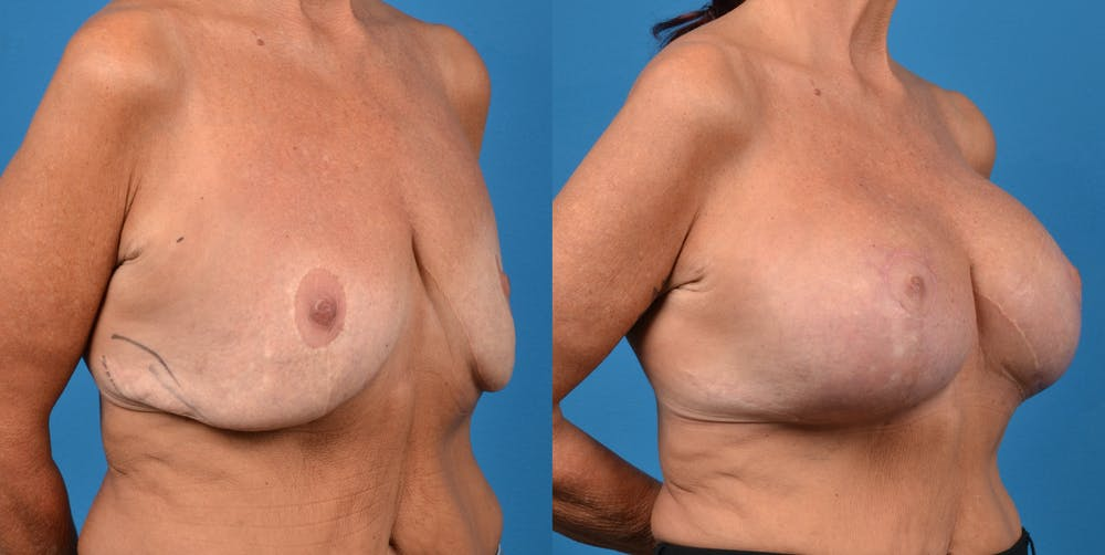 Breast Revision Gallery - Patient 14778924 - Image 4