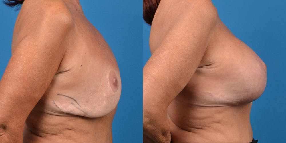 Breast Revision Gallery - Patient 14778924 - Image 5
