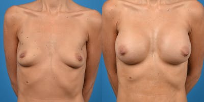 Breast Augmentation Gallery - Patient 14778929 - Image 1