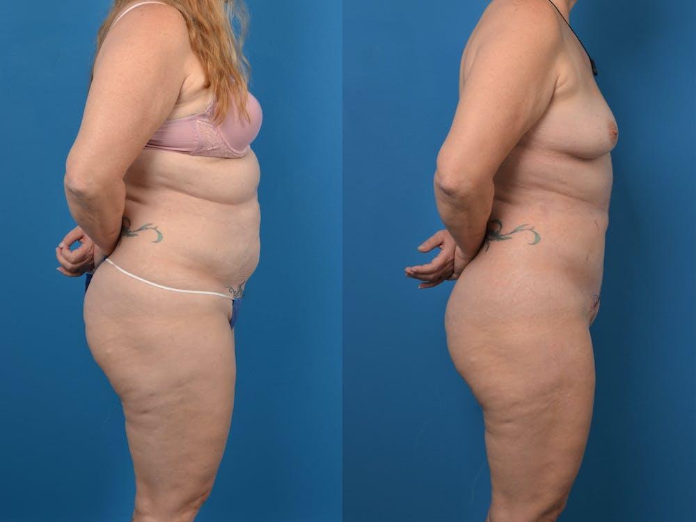 Abdominoplasty Gallery - Patient 14779077 - Image 1