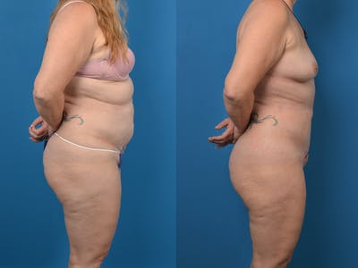 Abdominoplasty Gallery - Patient 14779077 - Image 1