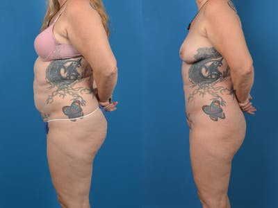 Abdominoplasty Gallery - Patient 14779077 - Image 2