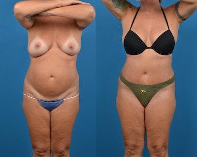 Abdominoplasty Gallery - Patient 14779091 - Image 1