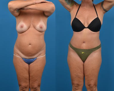 Abdominoplasty Gallery - Patient 14779091 - Image 1