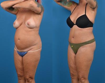 Abdominoplasty Gallery - Patient 14779091 - Image 2