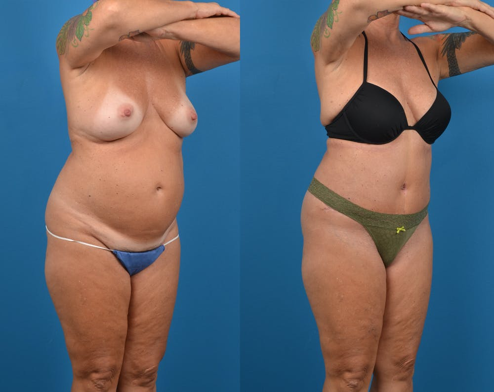 Abdominoplasty Gallery - Patient 14779091 - Image 4