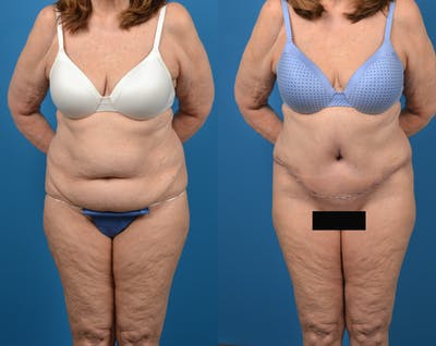 Abdominoplasty Gallery - Patient 14779095 - Image 1