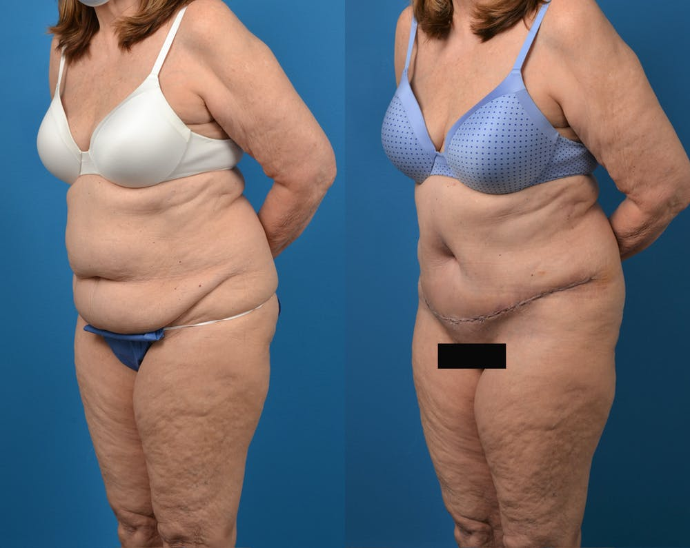 Abdominoplasty Gallery - Patient 14779095 - Image 2