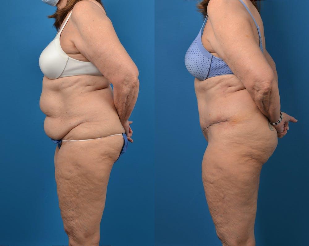 Abdominoplasty Gallery - Patient 14779095 - Image 3