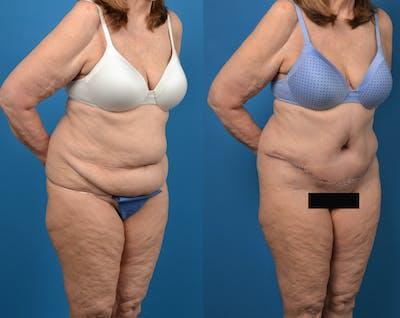 Abdominoplasty Gallery - Patient 14779095 - Image 4