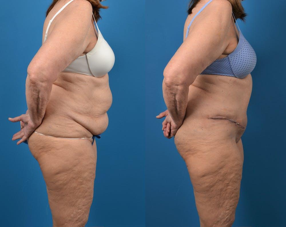 Abdominoplasty Gallery - Patient 14779095 - Image 5