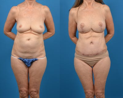 Abdominoplasty Gallery - Patient 14779107 - Image 1