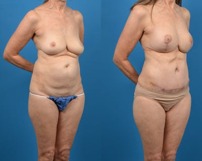 Mommy Makeover Gallery - Patient 14779113 - Image 2