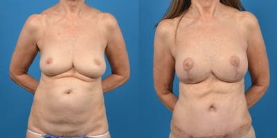 Breast Lift Gallery - Patient 14779114 - Image 1