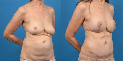 Breast Augmentation Gallery - Patient 14779117 - Image 2