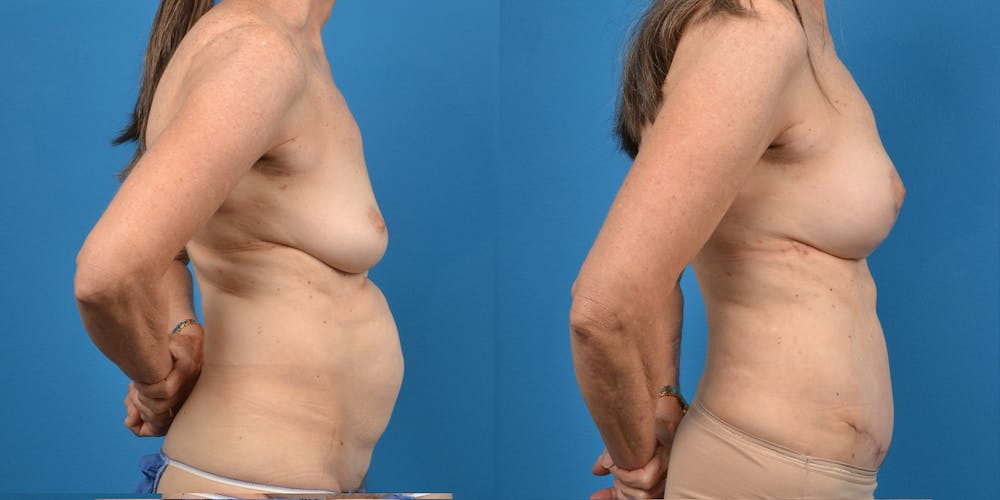 Breast Augmentation Gallery - Patient 14779117 - Image 3