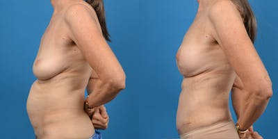Breast Augmentation Gallery - Patient 14779117 - Image 4