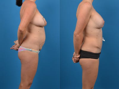 Abdominoplasty Gallery - Patient 14779120 - Image 1