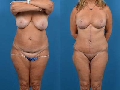 Abdominoplasty Gallery - Patient 14779138 - Image 1