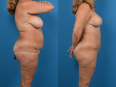 Thigh Lift Gallery - Patient 14779245 - Image 1