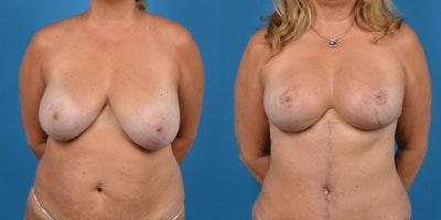 Breast Lift Gallery - Patient 14779139 - Image 1